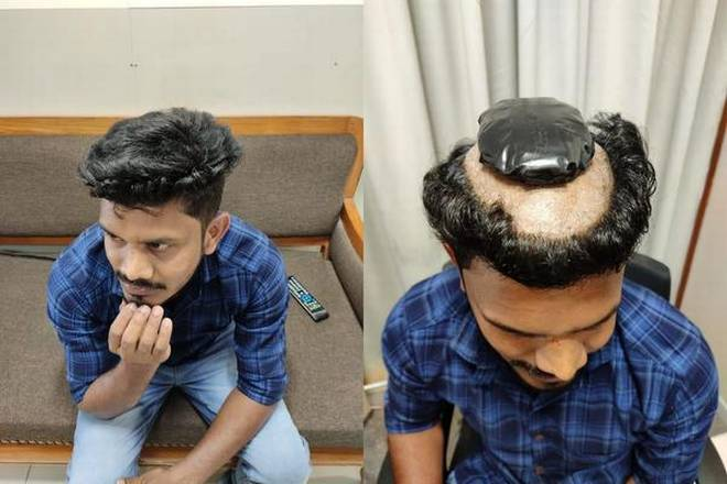 Indian man shaved head before gluing gold to scalp